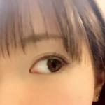 片目だけ一重になる3つの原因とは?遺伝もあるって本当なの!?